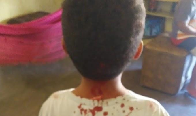 Criança de 5 anos é agredida com cadeirada pelo padrasto durante discussão de casal, no Ceará