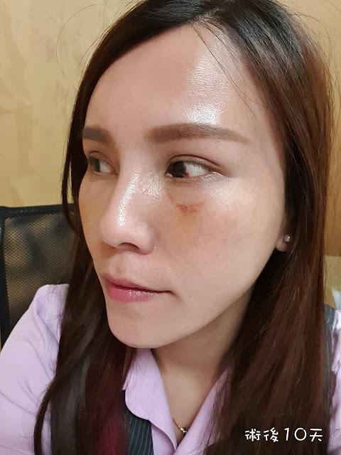 眼袋手術後第10天