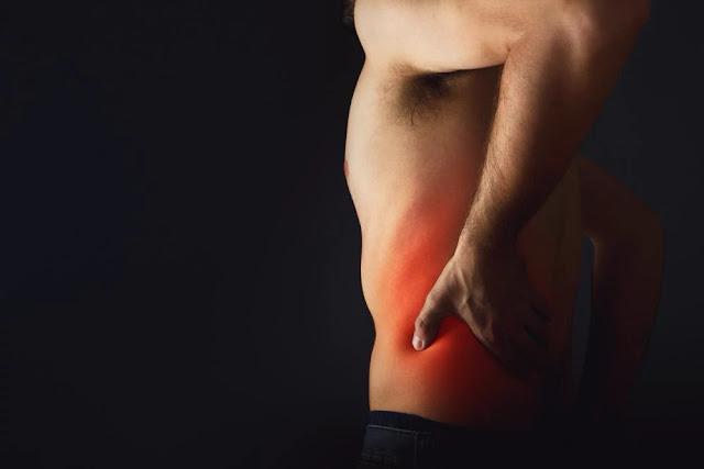 LBC - lower back pain - sciatica