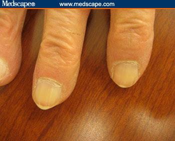 Yellow fingernails vitamin deficiency - Awesome Nail B12 Deficiency Nails