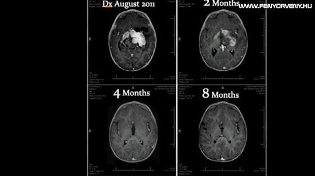 Egy 8 hónapos gyerek kigyógyult agydaganatból kannabisz olajjal