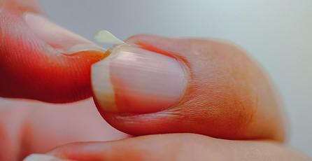 nail-disease