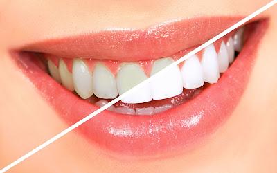Cara Alami Memutihkan Gigi Dengan Bahan-Bahan Dapur