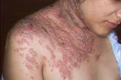 Obat herbal denature Ampuh atasi Gatal  Pada Kulit Seluruh Badan
