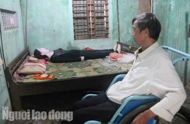 Meet The Man Who Has Been Sleeping With His Wife's Corpse For 16 Years