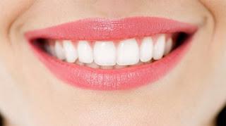 Tẩy trắng răng bị nhiễm tetracycline với công nghệ LED hiện đại