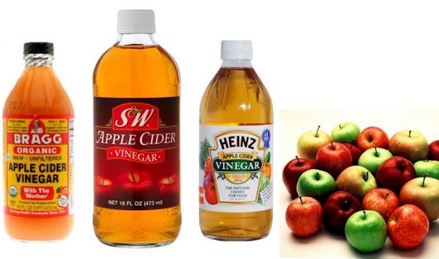 kebaikan cuka epal untuk kesihatan