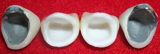 Diferencia coronas de porcelana pura y ceramo metálicas