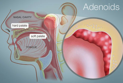 Adenoids, Adenitis Homeopathy Specialty Treatment Hospital in Velachery, Chennai, Tamilnadu