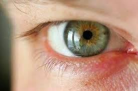 Penyakit Mata Rabun senja