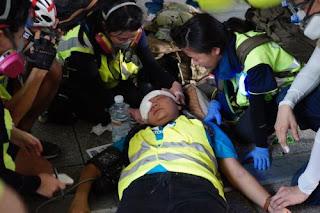 Meliput Demo di Hongkong, Jurnalis Indonesia Tertembak di Bagian Dekat Mata