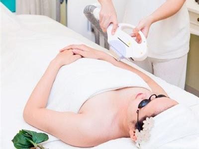 Điều trị triệt lông bằng công nghệ Elight giúp đánh bay các nang lông cứng đầu