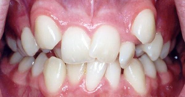 Nguyên nhân khiến răng bị lòi sĩ và cách điều trị hiệu quả nhất hiện nay