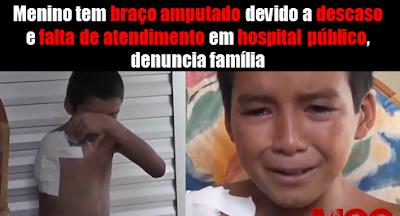 Brasil da Copa: Garoto de 13 anos tem braço amputado em hospital de Parnaíba