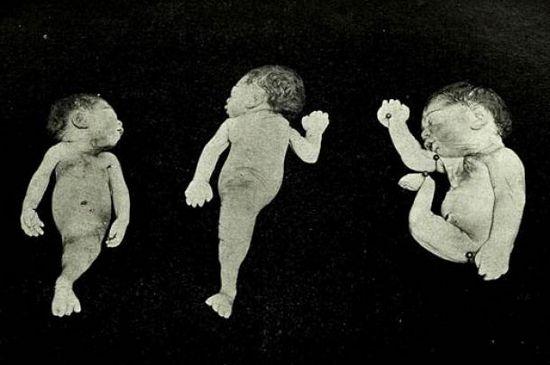 Immagini di un caso clinico di sirenomelia, o sindrome della sirena, riportato nell'edizione del 1902 del Maryland Medical Journal.