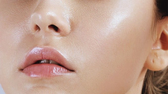 Natural Home Remedies for Oily Skin Care