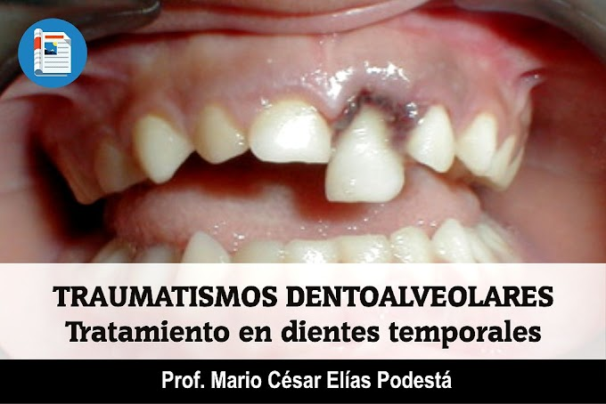 TRAUMATISMOS DENTOALVEOLARES: Tratamiento en dientes temporales - Dr. Mario César Elías Podestá