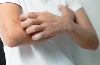 Cara Mengobati Gatal Alergi Secara Alami