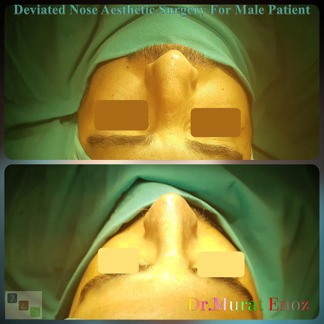 Deviated and Thick Skinned Nose Aesthetic Surgery For Men