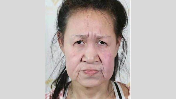 15-летняя школьница с лицом бабушки после пластики стала красавицей