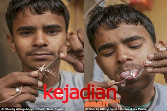 16 year old electric boy India withstand shocking 11000 volts