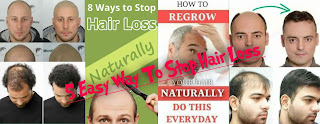 Hair loss reasons