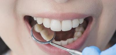 الحفاظ على الاسنان من التسوس