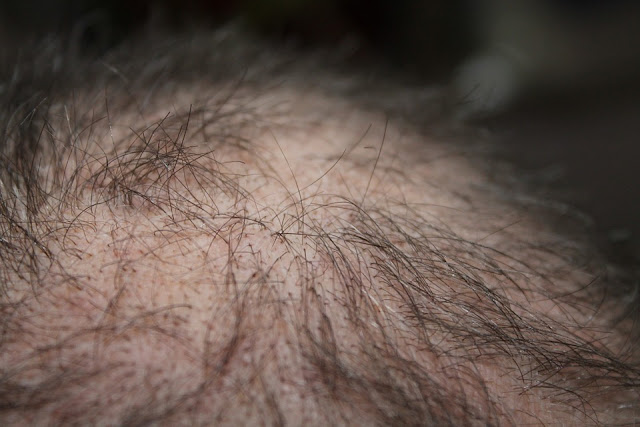 Losing Your Hair? Here's What You Can Do