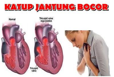Pengobatan Yang Ampuh Penyakit Jantung Bocor Untuk Semua Usia
