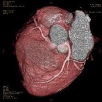 Gejala dan Tanda Penyakit Jantung