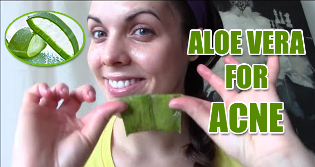 9 Best Ways How You Can Use Aloe Vera for Acne Treatment