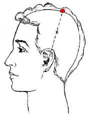 Resultado de imagen para puntos acupuntura 20 VG