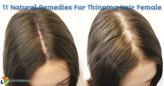 11 Natural Remedies For Thinning Hair Female