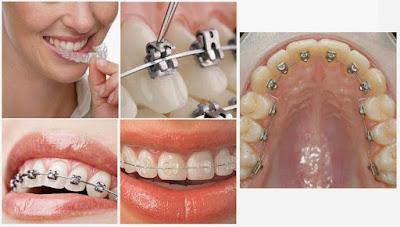 Đeo niềng răng giá bao nhiêu tiền hiện nay?