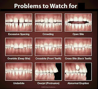 teeth trainer - masalah gigi