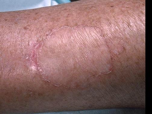 síntomas de porokeratosis actínica de diabetes