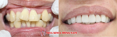 3 lý do nên bọc sứ thay vì niềng răng -6