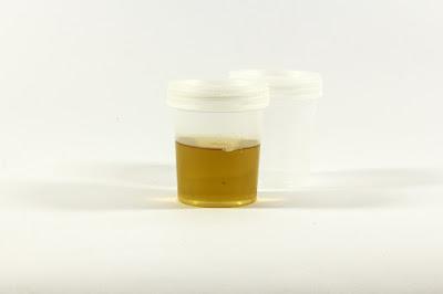 Tingkat warna urine yang normal