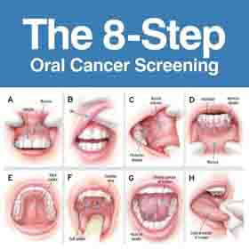 How Does Mouth Cancer Start: Brief Information