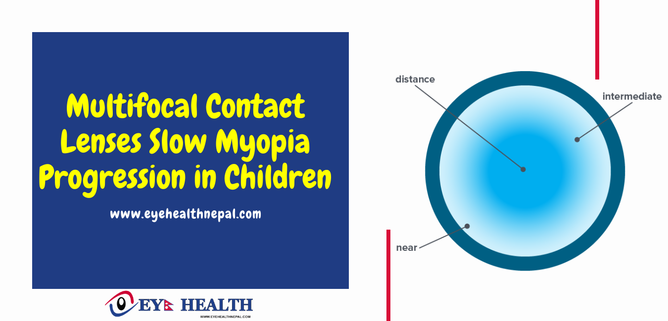 Multifocal Contact Lenses Slow Myopia Progression in Children