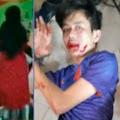 Detik-detik Syekh Ali Jaber Ditusuk Orang Tak Dikenal, Pelaku Sudah Ditangkap