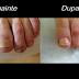 Scapă de CIUPERCA unghiilor pentru totdeauna cu un tratament simplu făcut la tine acasă