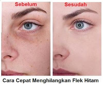 cara menghilangkan flek hitam di wajah secara cepat dengan bahan alami