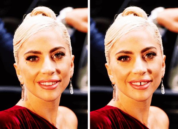 Lady Gaga Dişleri