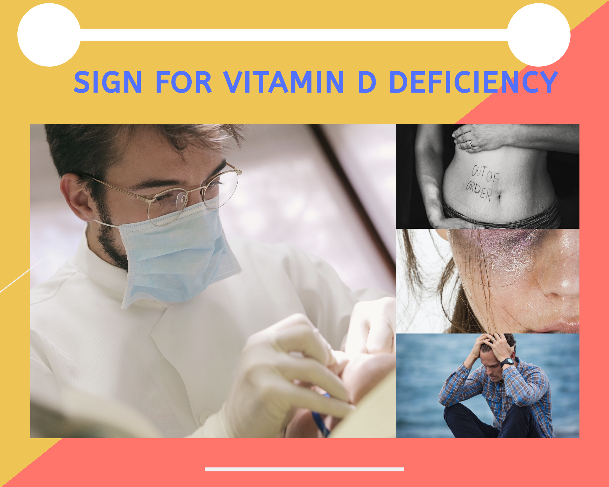 sign of vitamin D deficiency