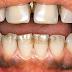 Cara Memutihkan Gigi Yg Hitam
