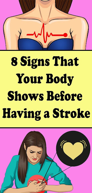 8 Signs That Your Body Shows Before Having a Stroke