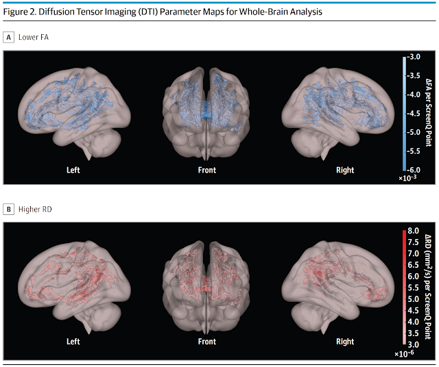 Figure 2. Diffusion Tensor Imaging (DTI) Parameter Maps for Whole-Brain Analysis