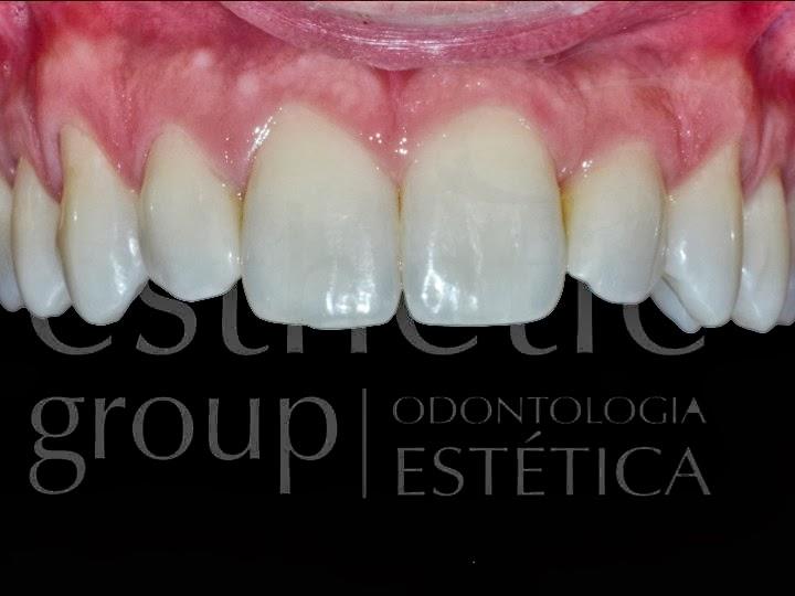 e47aa857efbf0 As lentes de contato dentais são um excelente tratamento quando bem  indicados, possibilitando resultados estéticos muito satisfatórios.