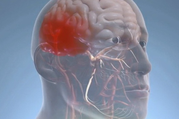 'Nerve-Release' Surgery Helped Ease One Man's Tough Migraines
